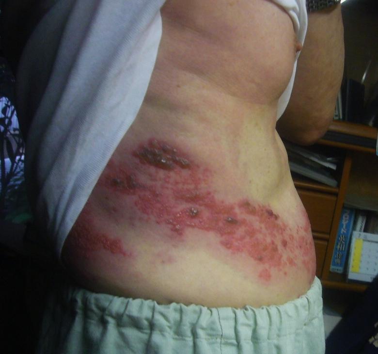帯状疱疹4日目最盛期 R2.7.22