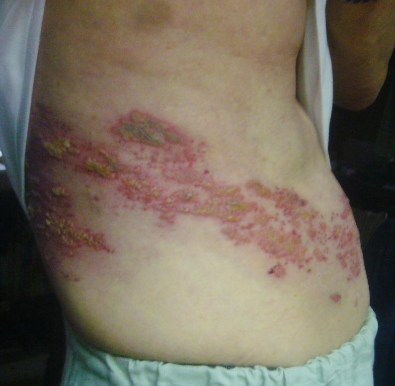 帯状疱疹7日目 R2.7.25