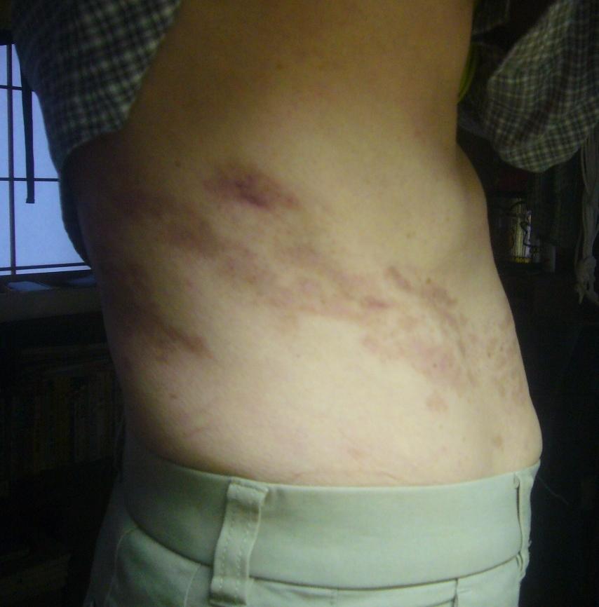 帯状疱疹 55日目 たまにへその上が痛い R2.9.21