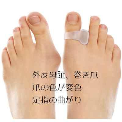 外反母趾1