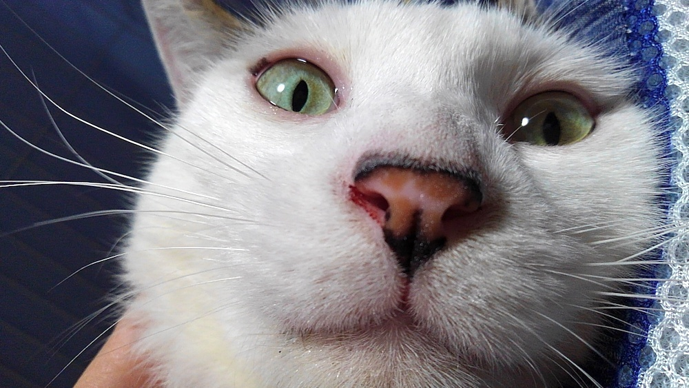 トニー・スターク:鼻水と鼻血