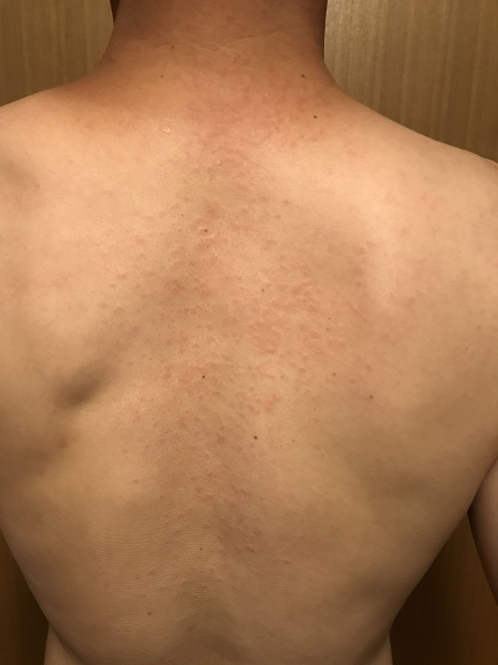 200805-発疹?